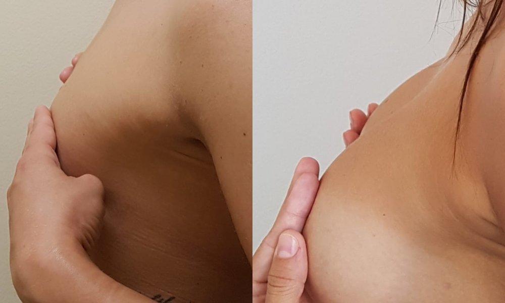Augmentácia s Motiva Ergonomix 275 ml, Full profil pod svalom. Operoval MUDr. Zdenko Zamboj, BELLEZA - centrum plastickej chirurgie a laserovej medicíny.