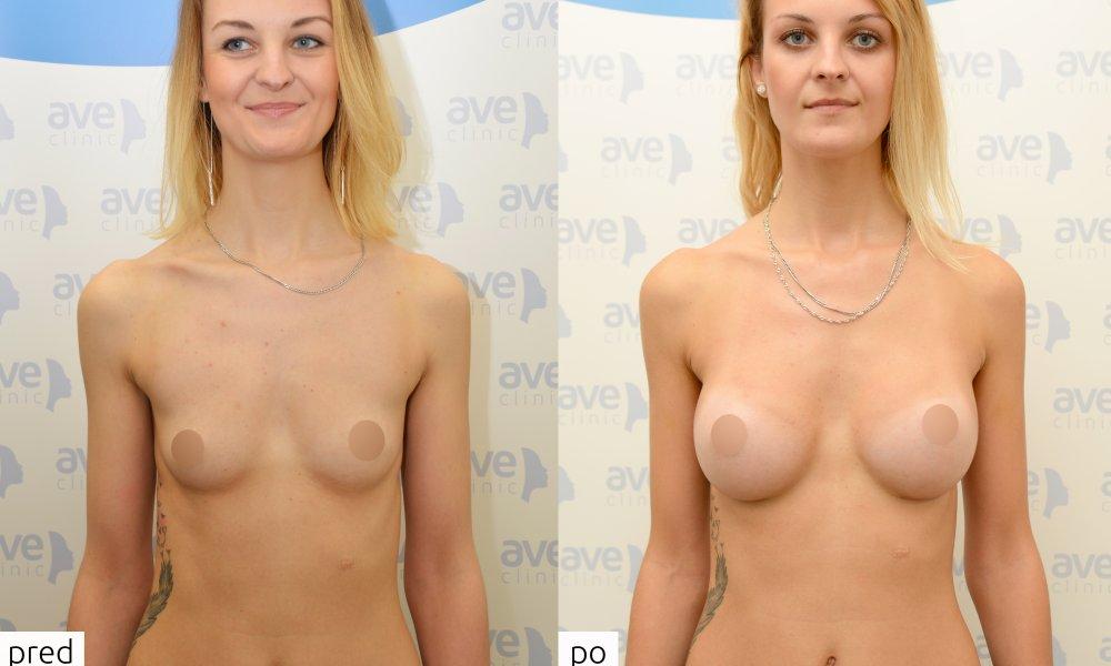 Zuzka vyhrala augmentáciu prsníkov vďaka aveclinic a Motiva a súťaži o zákrok zdarma. Operoval MUDr. Jozef Fedeleš, PhD., implantáty Motiva Ergonomix