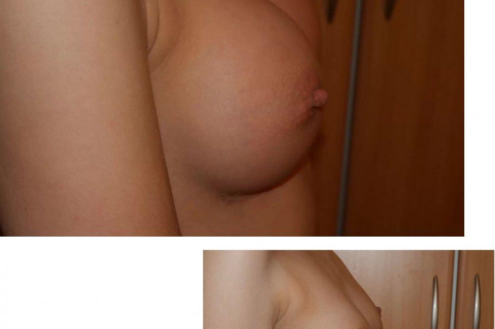 Motiva implantáty Round, 400 ml, Full profil od MUDr. Viliam Jurášek, Porta Med, Košice