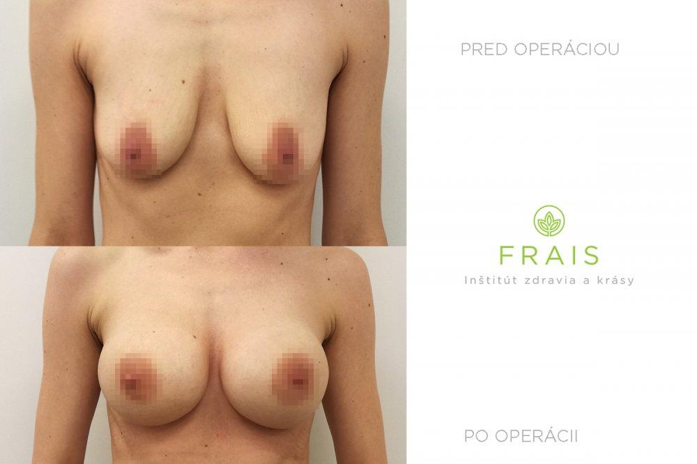 Motiva ergonomické implantáty 450 ml plný profil, porovnanie pred a po operácii (po 6 týždňoch).