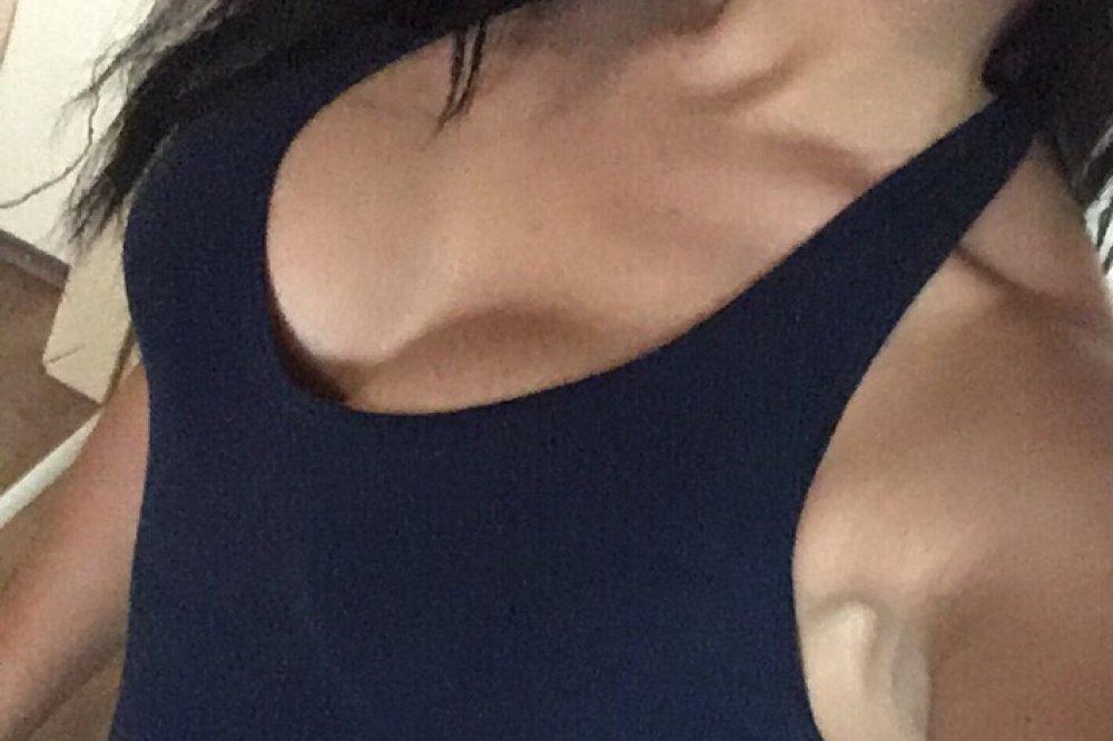Kristina s Motiva Ergonomix 275 ml, Full profil pod svalom. Operoval MUDr. Zdenko Zamboj, BELLEZA - centrum plastickej chirurgie a laserovej medicíny.